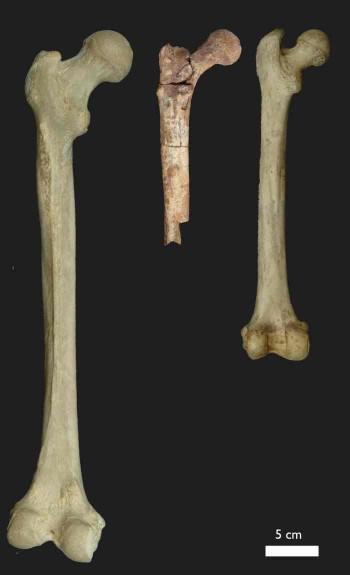 Nett Oberschenkelknochen Galerie - Anatomie Von Menschlichen ...